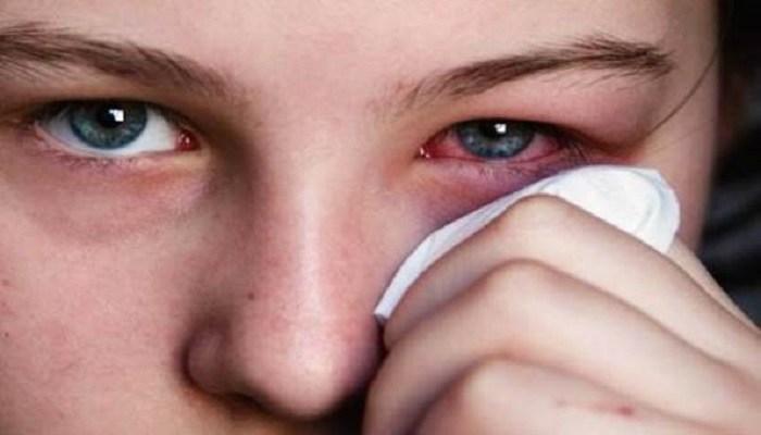 monsoon eyes care